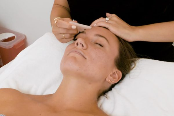 Acupuncture-Bournemouth-Poole-Christchurch-Cupping-Gua-Sha-Auricular-Moxibustion-Facial-Revitalisation-Rejuvenation-cosmetic-best